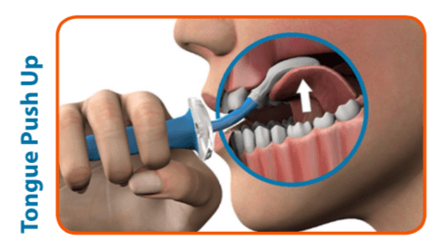 This picture shows the use of the Abilex device by pushing the tongue up. This is a lingual strengthening device. Press the Abilex bulb into the roof of the mouth.