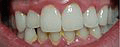 Gingivitis: red, swollen gums with plaque build-up
