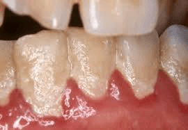 White debris on teeth could be from food and microorganisms. Shows poor oral care. Can be easily removed with a toothbrush, unlike calculus.