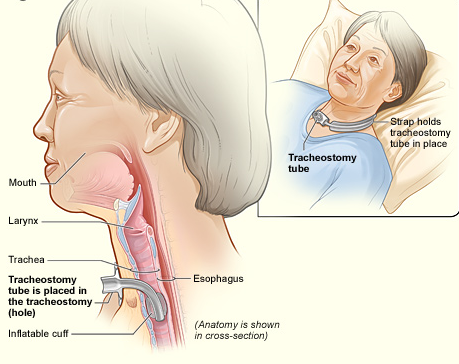 This picture shows where a tracheotomy tube goes in the neck, below the vocal cords. A cuff/balloon is inflated in this picture around the bottom of the trach. It is important to check cuff pressures and not over-inflate. The cuff must be DEFLATED fully to place the speaking valve on the hub of the trach. With a trach in place, you loose your ability to taste, smell and talk. Swallowing can be dangerous too. We place a speaking valve, which is also a cough, swallow, taste and smell valve!