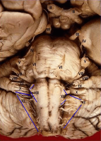 Inferior view of cranial nerves exiting brainstem in cadaver.