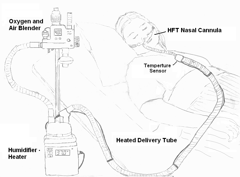 high-flow nasal cannula set-up. This blog addresses swallowing safety when on a HFNC.